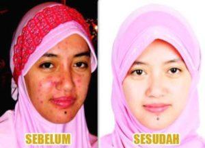 melilea-botanical-skin-care-komplit4-1.jpg