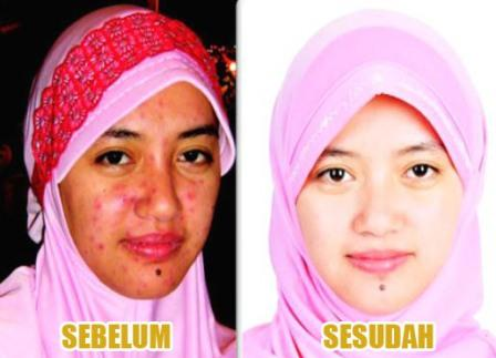 melilea-botanical-skin-care-komplit4-1-2.jpg